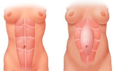 Diastasi dei muscoli retti addominali